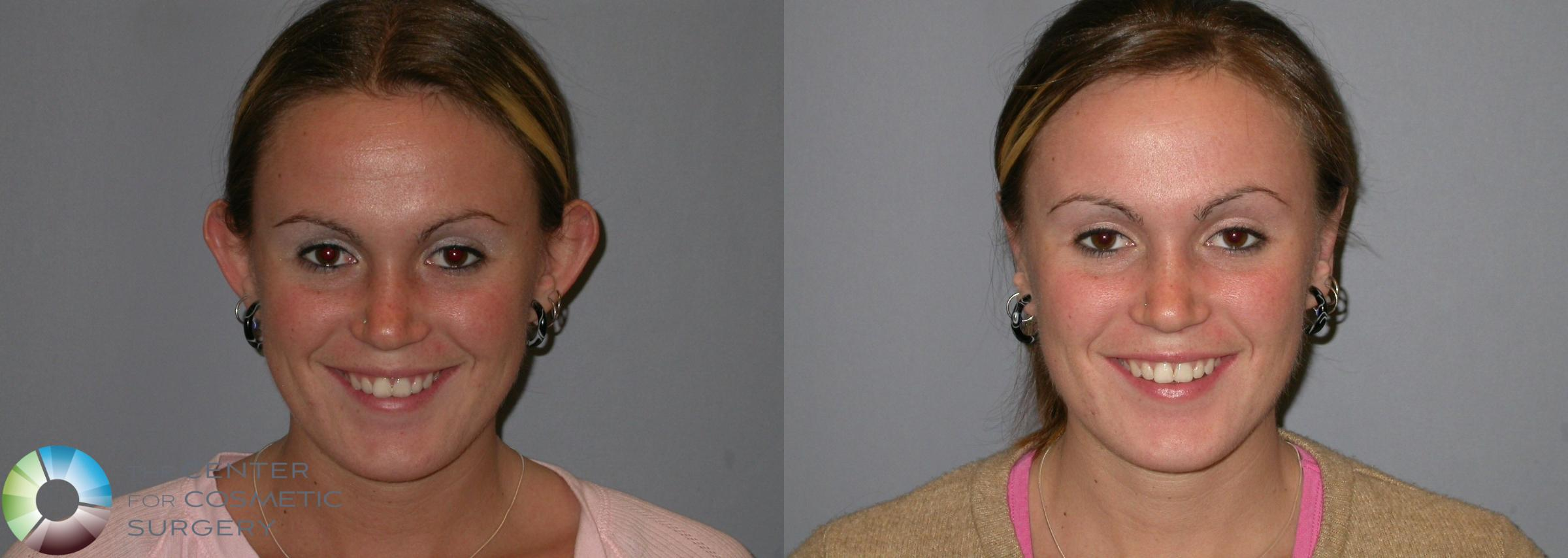 Ear Surgery Case 108 Before & After View #1 | Golden, CO | The Center for Cosmetic Surgery