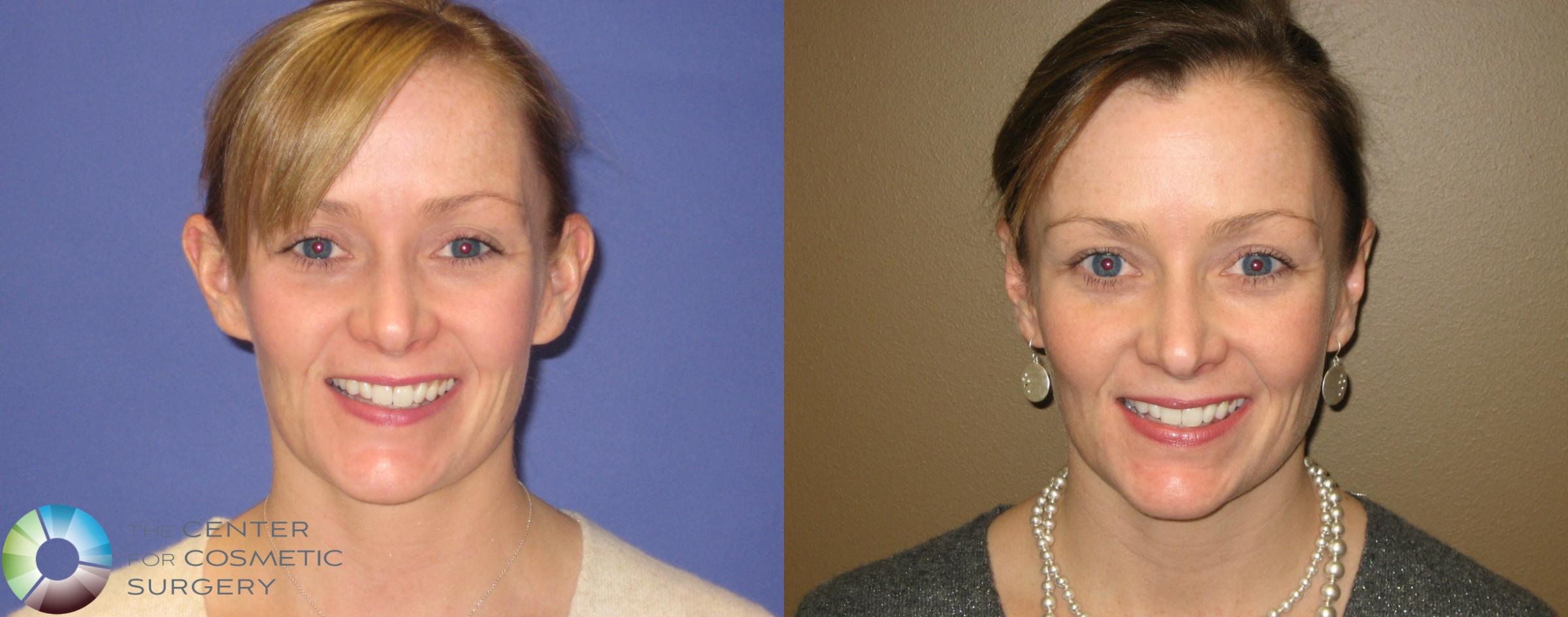 Ear Surgery Case 283 Before & After View #1 | Denver & Golden, CO | The Center for Cosmetic Surgery