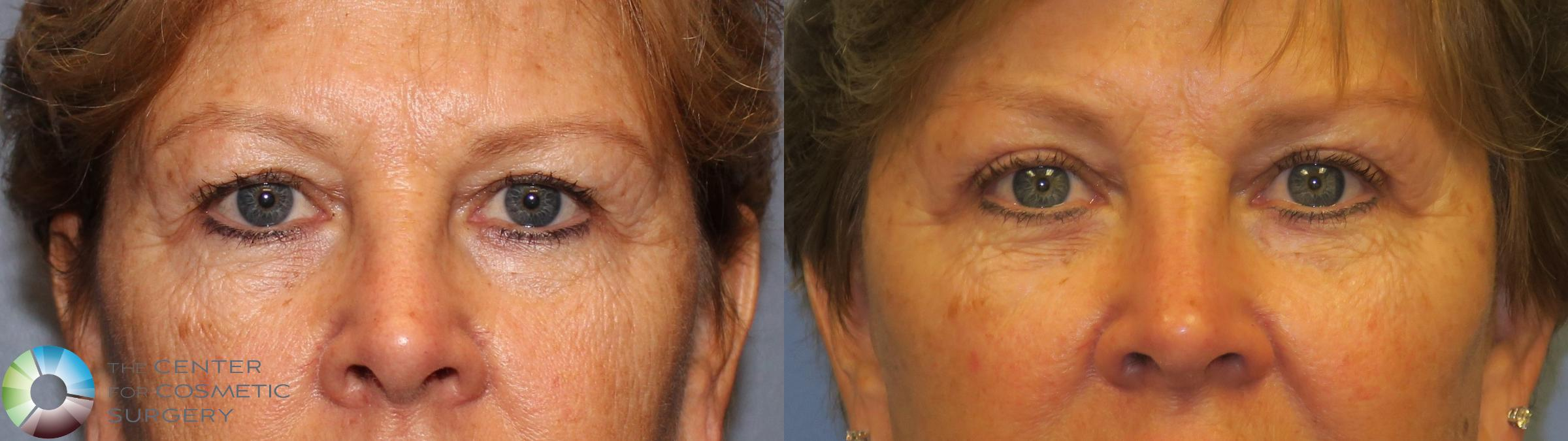 Mini Brow Lift Case 11486 Before & After brow eyes front | Golden, CO | The Center for Cosmetic Surgery