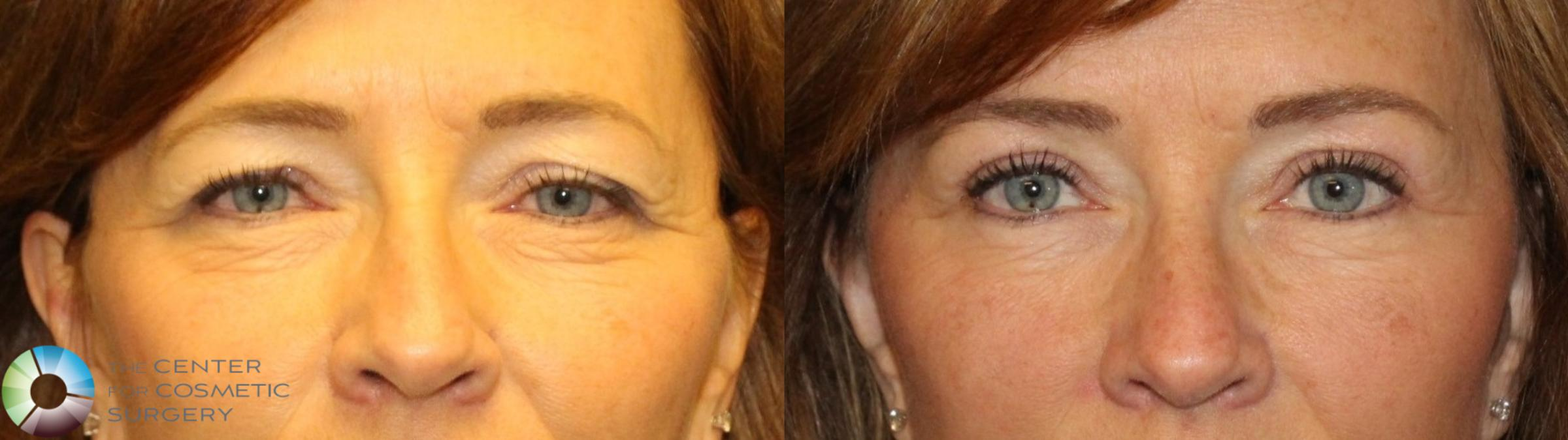 Mini Brow Lift Case 11500 Before & After brow eyes front | Denver & Golden, CO | The Center for Cosmetic Surgery