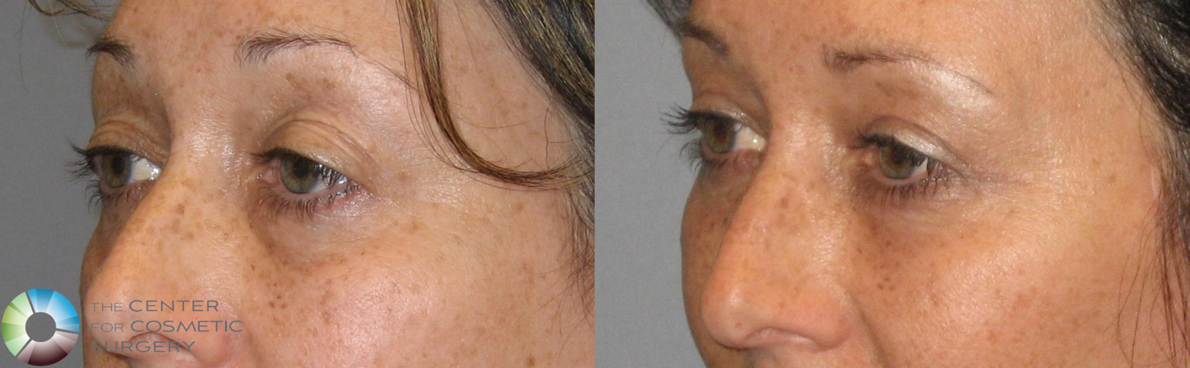 Eyelid Lift Case 161 Before & After View #2 | Golden, CO | The Center for Cosmetic Surgery