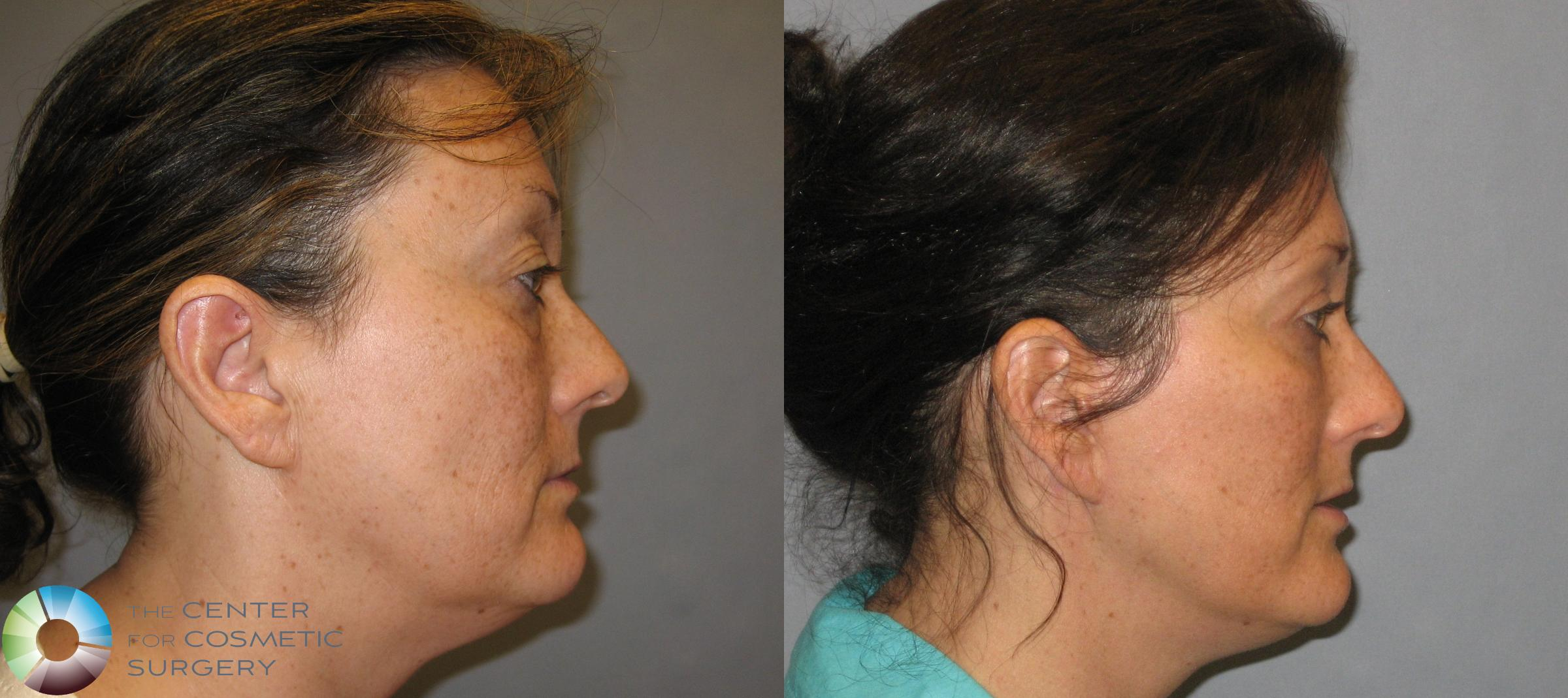 Eyelid Lift Case 161 Before & After View #3 | Golden, CO | The Center for Cosmetic Surgery