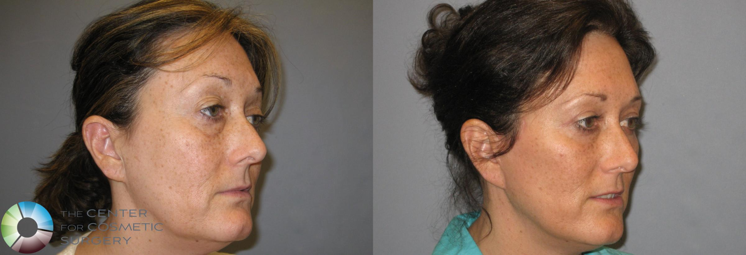 Eyelid Lift Case 161 Before & After View #4 | Golden, CO | The Center for Cosmetic Surgery