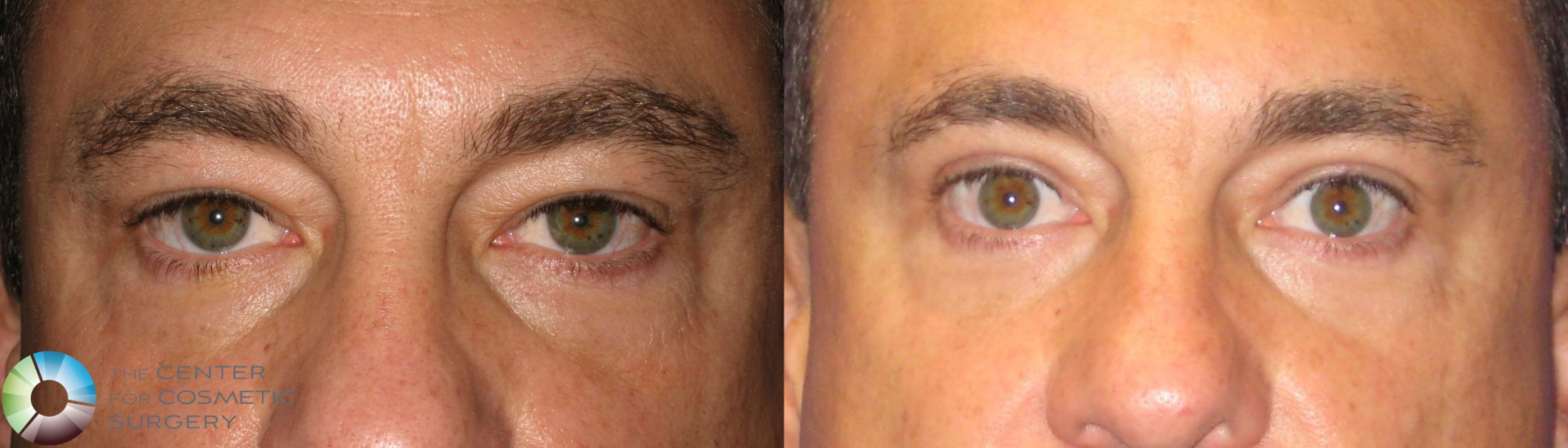 Eyelid Lift Case 237 Before & After View #1 | Golden, CO | The Center for Cosmetic Surgery