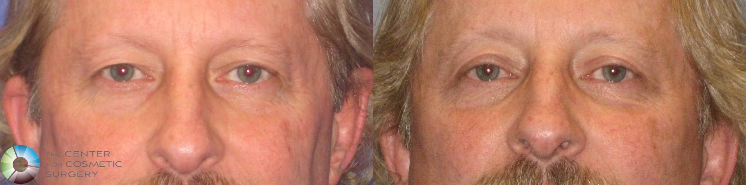 Eyelid Lift Case 304 Before & After View #1 | Golden, CO | The Center for Cosmetic Surgery