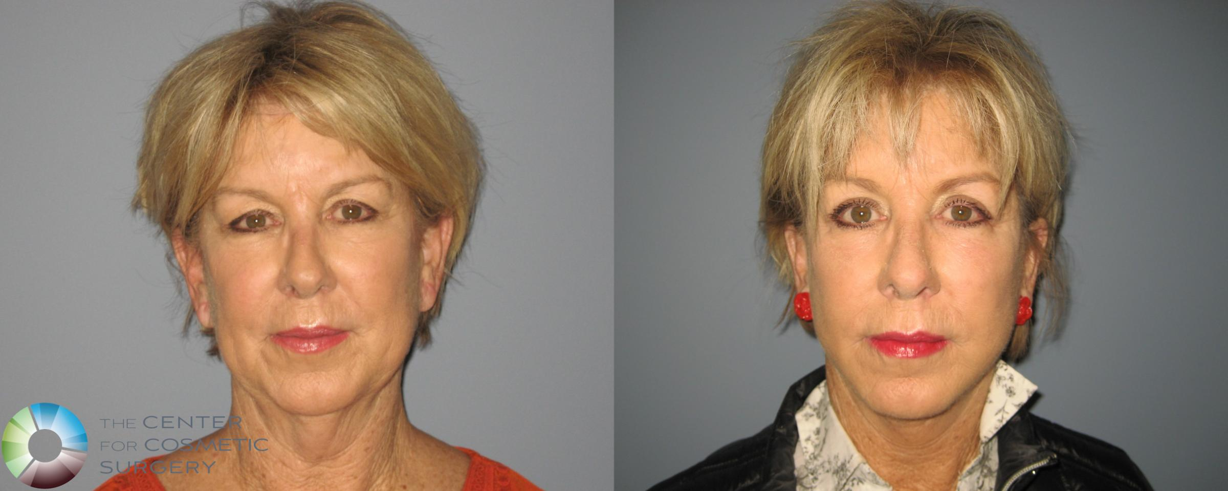 Eyelid Lift Case 461 Before & After View #1 | Golden, CO | The Center for Cosmetic Surgery