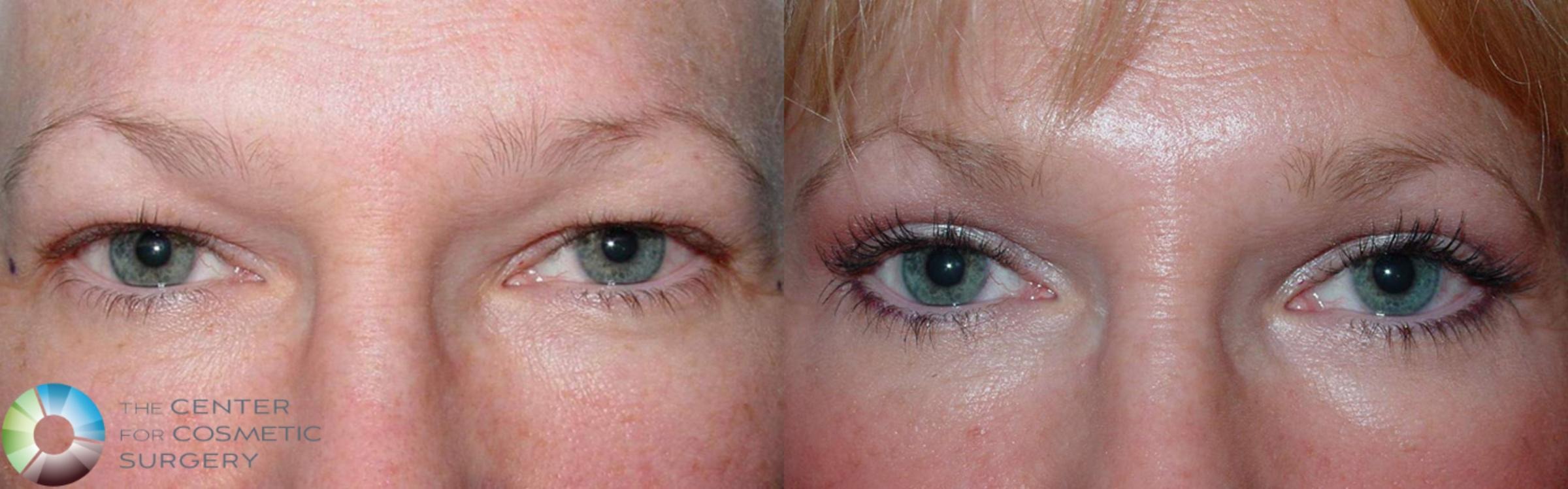 Eyelid Lift Case 497 Before & After View #1 | Golden, CO | The Center for Cosmetic Surgery