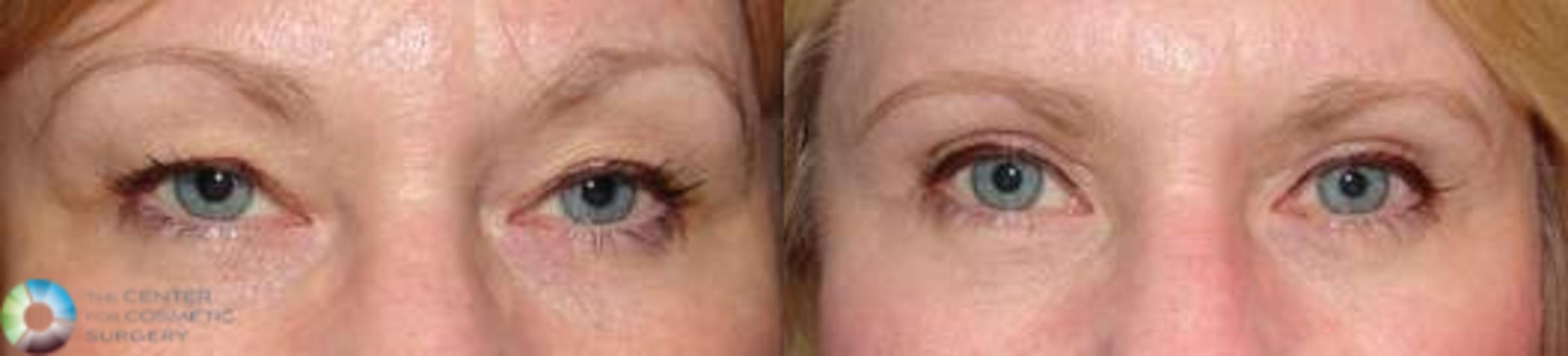Eyelid Lift Case 577 Before & After View #1 | Golden, CO | The Center for Cosmetic Surgery