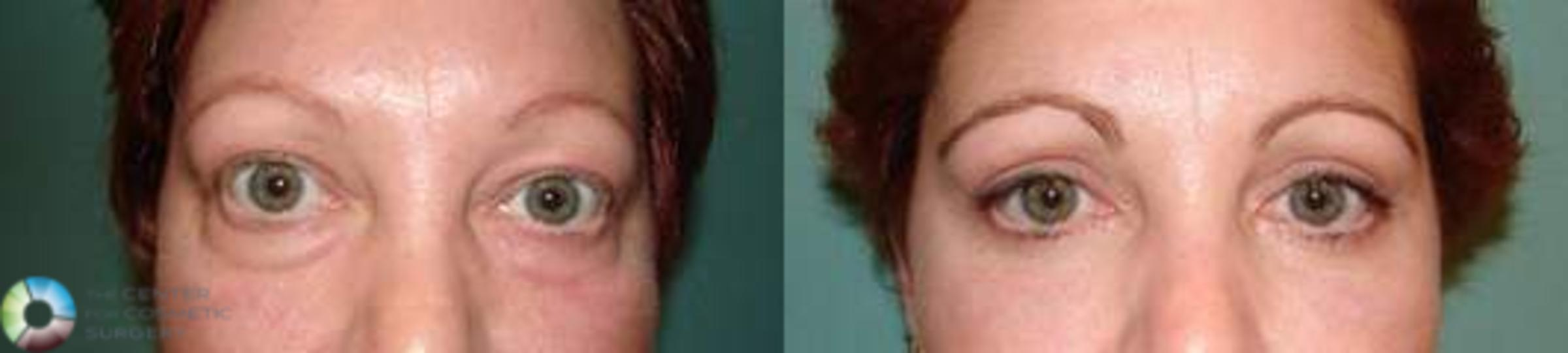 Eyelid Lift Case 578 Before & After View #1 | Denver & Golden, CO | The Center for Cosmetic Surgery