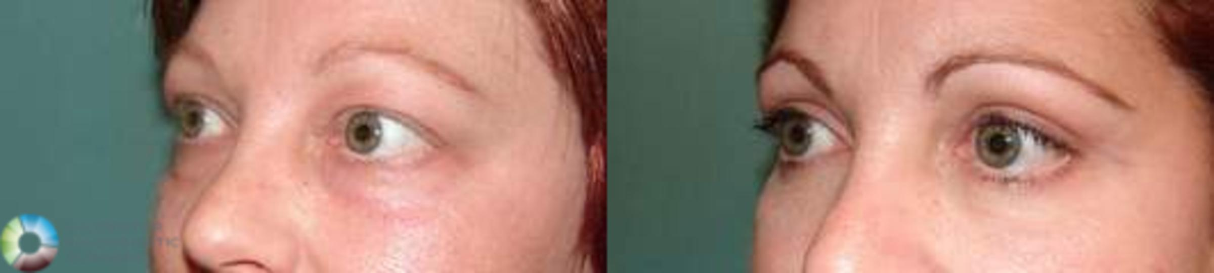 Eyelid Lift Case 578 Before & After View #2 | Golden, CO | The Center for Cosmetic Surgery