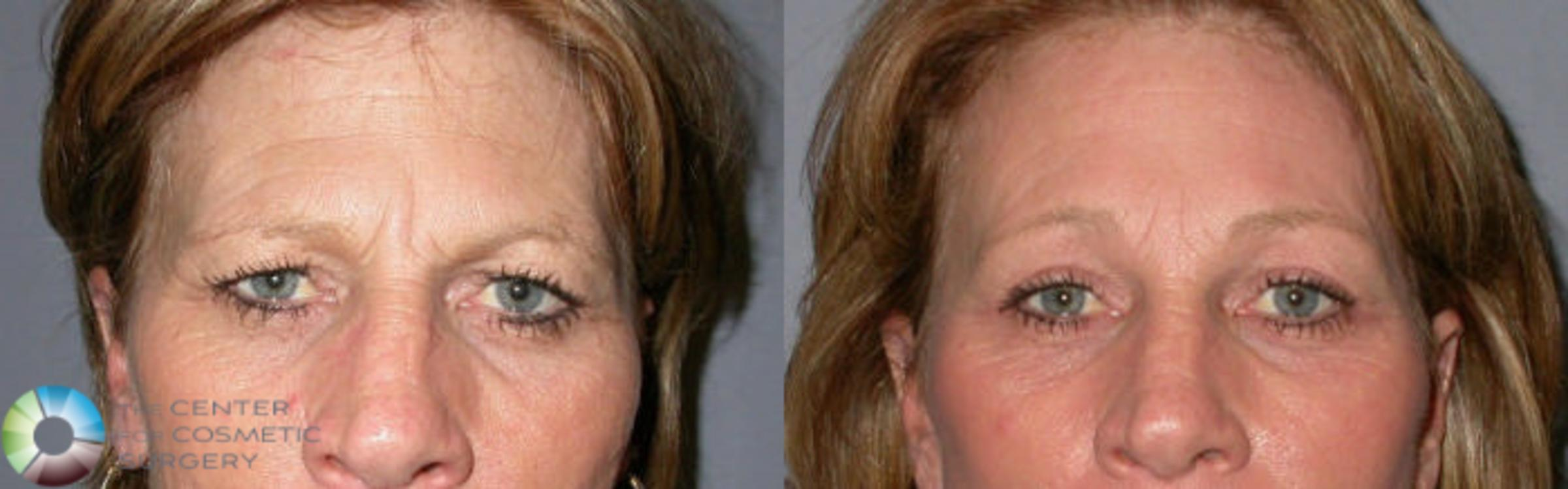 Eyelid Lift Case 66 Before & After View #1 | Golden, CO | The Center for Cosmetic Surgery