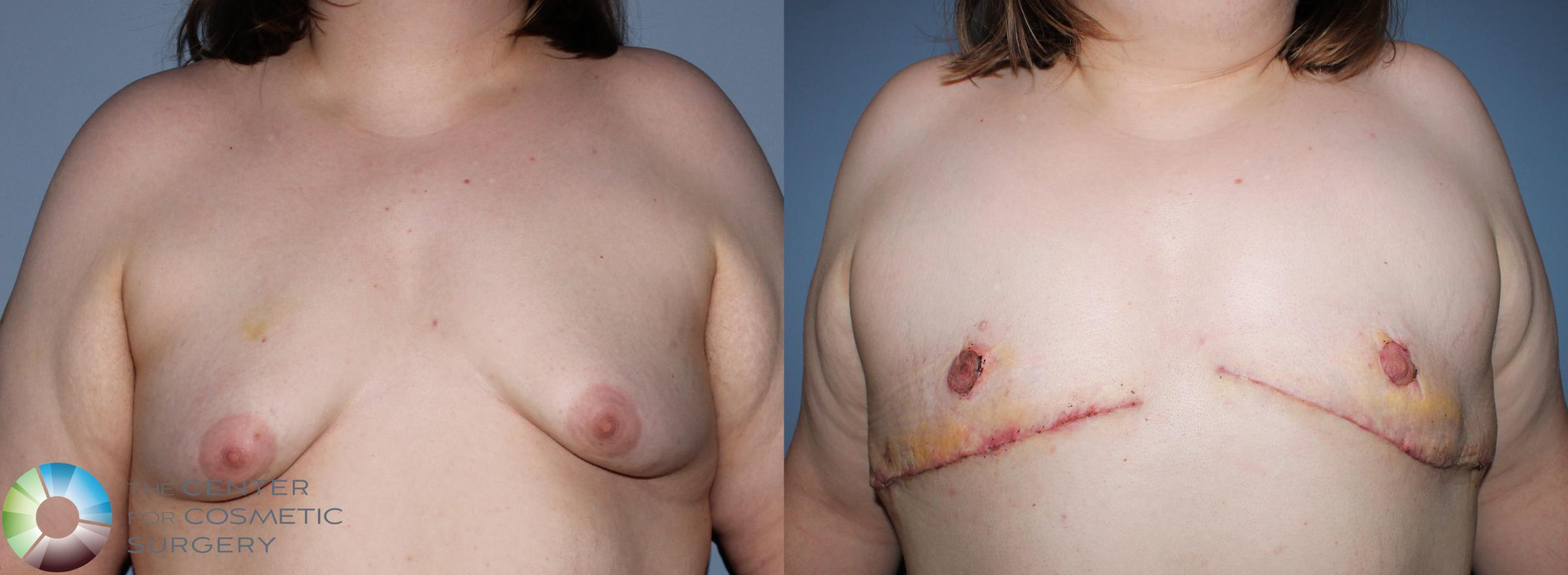 FTM Top Surgery/Chest Masculinization Case 11200 Before & After Front | Golden, CO | The Center for Cosmetic Surgery