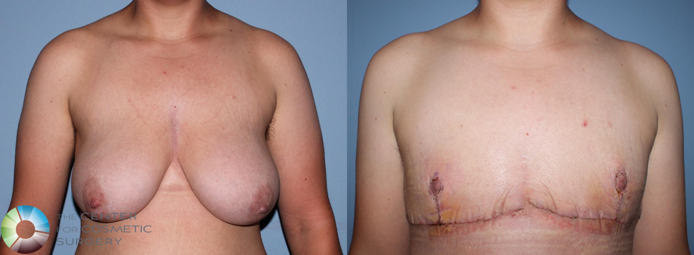 FTM Top Surgery/Chest Masculinization Case 11201 Before & After Front | Golden, CO | The Center for Cosmetic Surgery