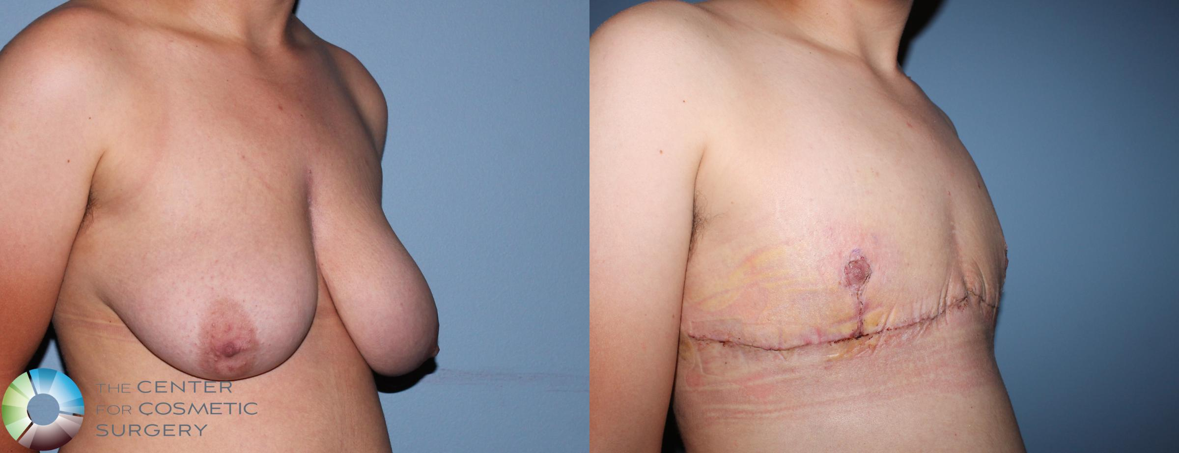 FTM Top Surgery/Chest Masculinization Case 11201 Before & After Right Oblique | Golden, CO | The Center for Cosmetic Surgery