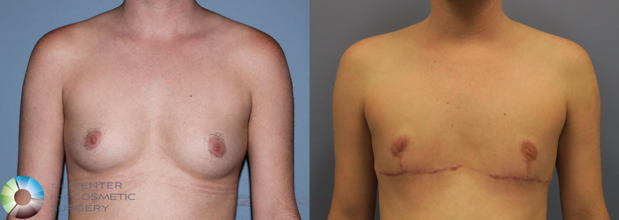 FTM Top Surgery/Chest Masculinization Case 11205 Before & After Front | Golden, CO | The Center for Cosmetic Surgery