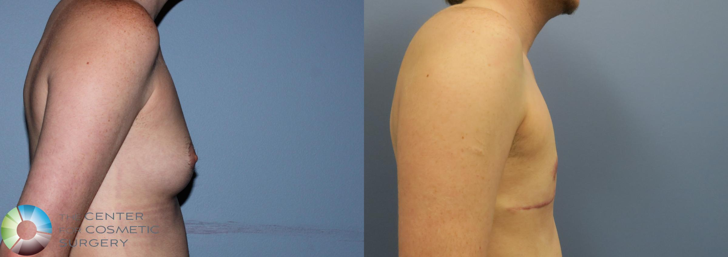 FTM Top Surgery/Chest Masculinization Case 11205 Before & After Right Side | Golden, CO | The Center for Cosmetic Surgery