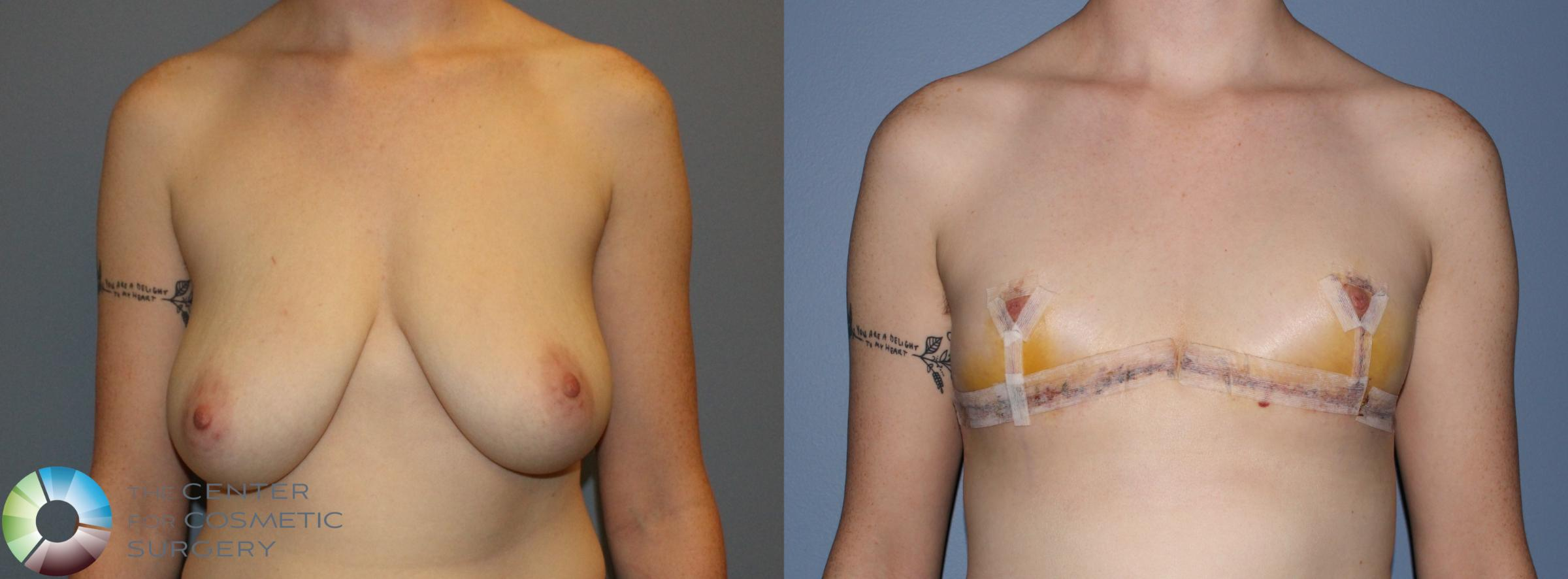 FTM Top Surgery/Chest Masculinization Case 11212 Before & After Front | Golden, CO | The Center for Cosmetic Surgery
