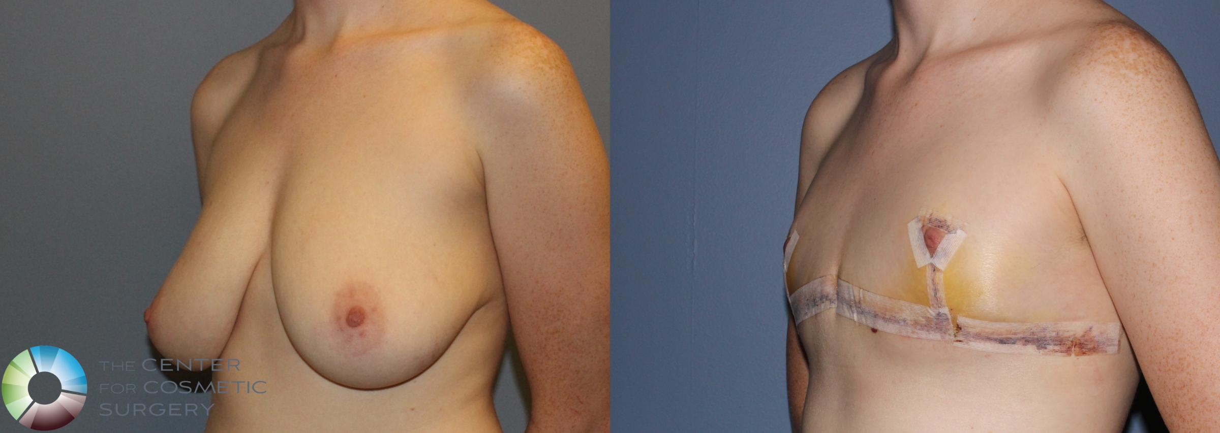 FTM Top Surgery/Chest Masculinization Case 11212 Before & After Left Oblique | Golden, CO | The Center for Cosmetic Surgery