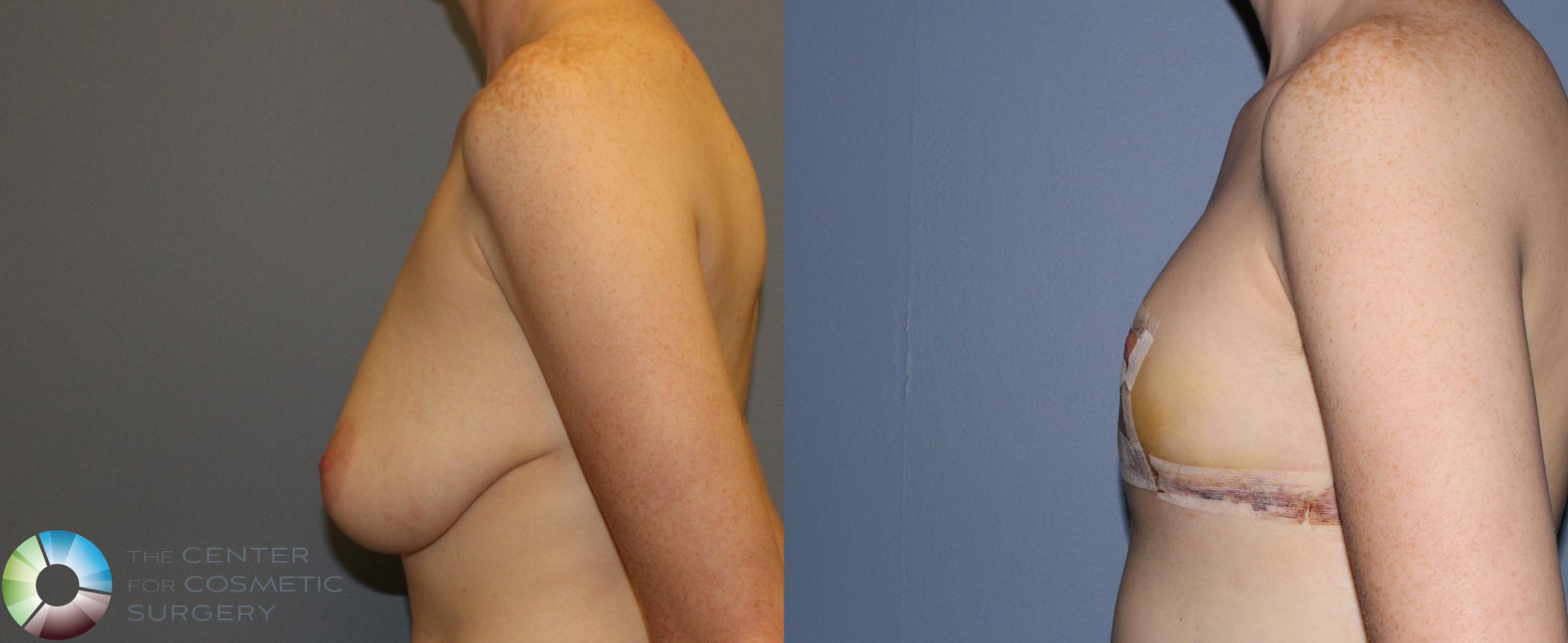 FTM Top Surgery/Chest Masculinization Case 11212 Before & After Left Side | Golden, CO | The Center for Cosmetic Surgery