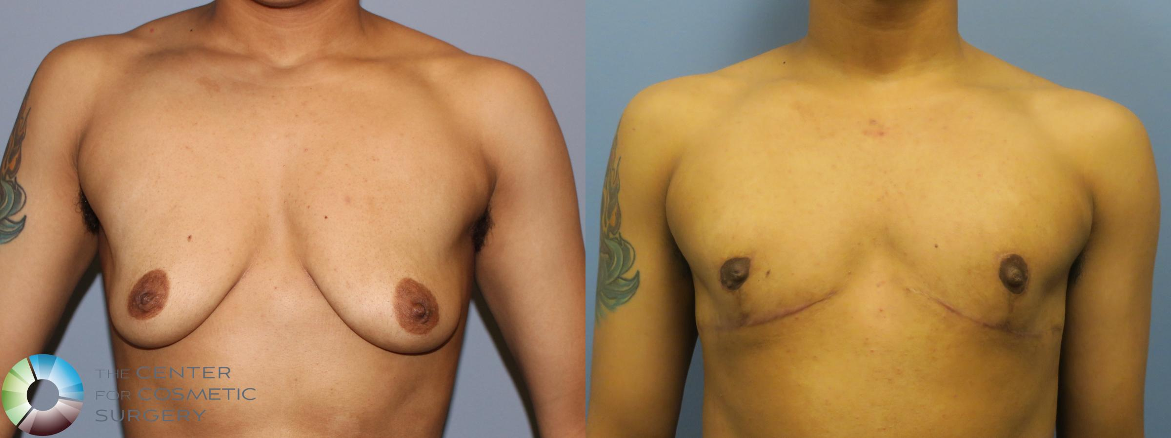 Best Denver FTM Top Surgery