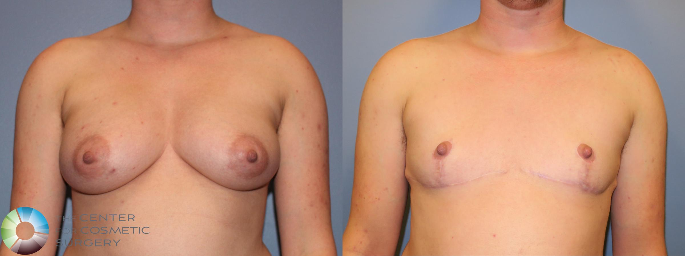 Best Top Surgery FTM Chest Recontouring