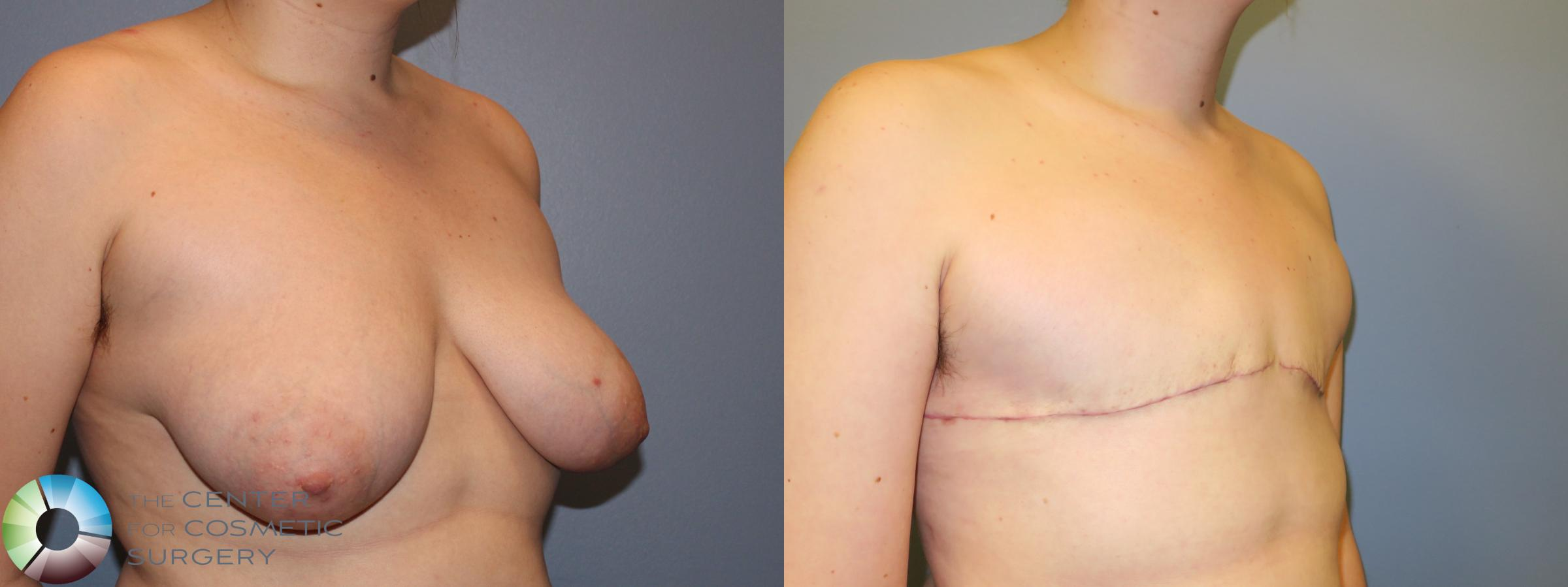 Best Denver Top Surgery FTM Nipple Removal