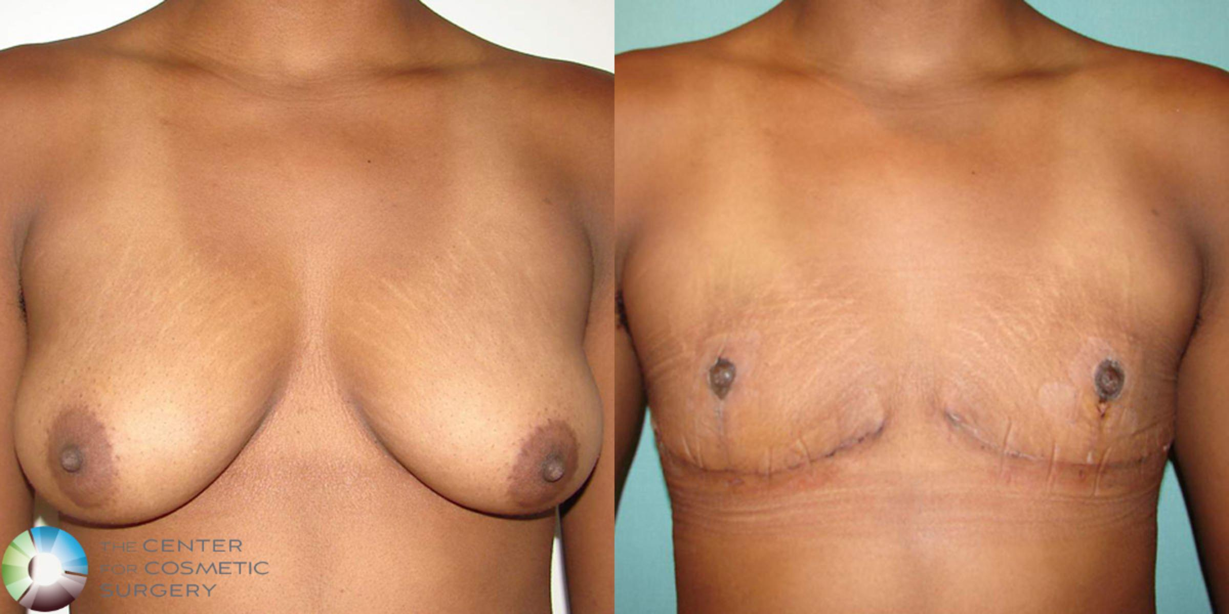 FTM Top Surgery/Chest Masculinization Case 506 Before & After View #1 | Denver & Golden, CO | The Center for Cosmetic Surgery