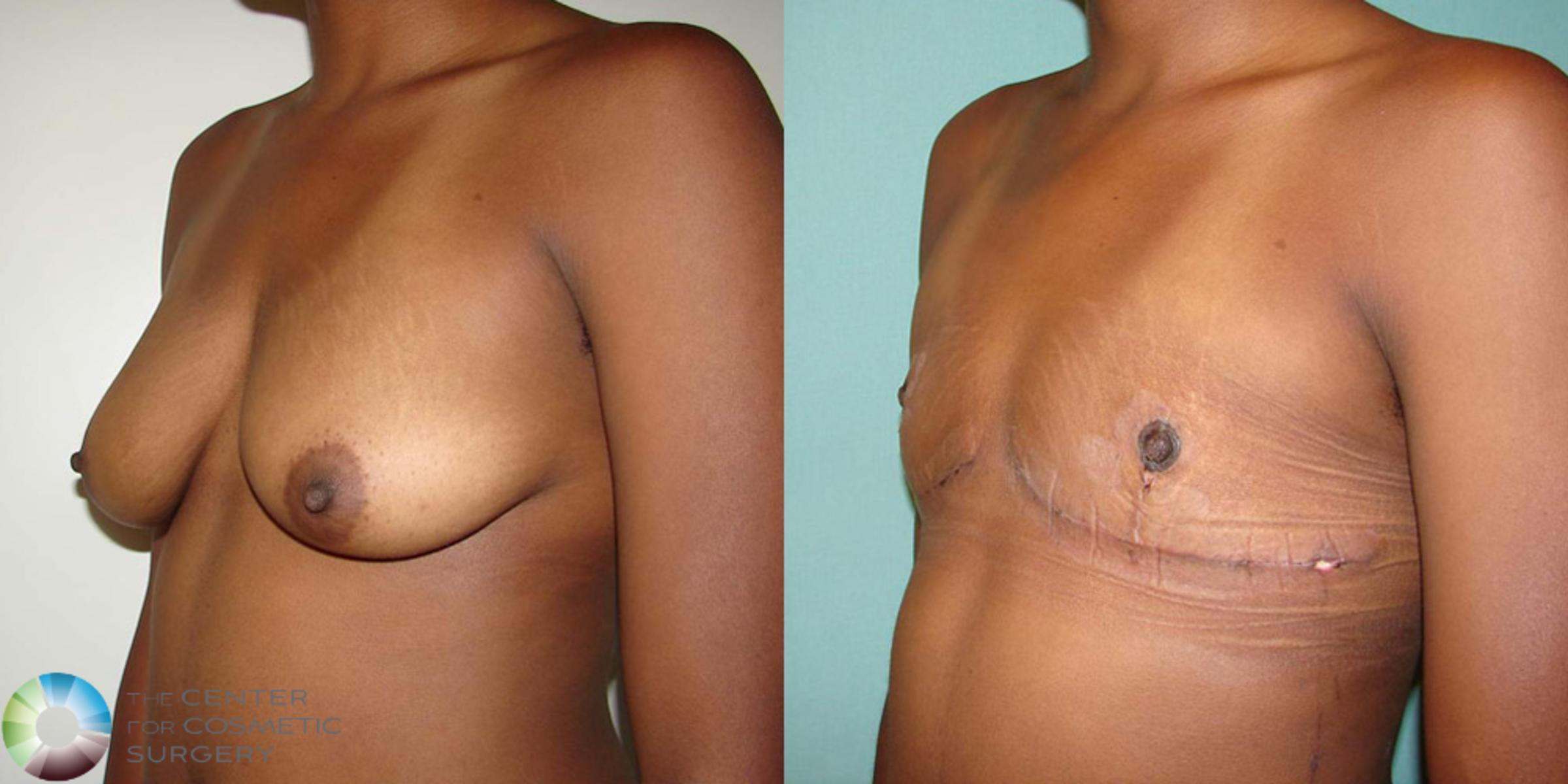 FTM Top Surgery/Chest Masculinization Case 506 Before & After View #3 | Denver & Golden, CO | The Center for Cosmetic Surgery