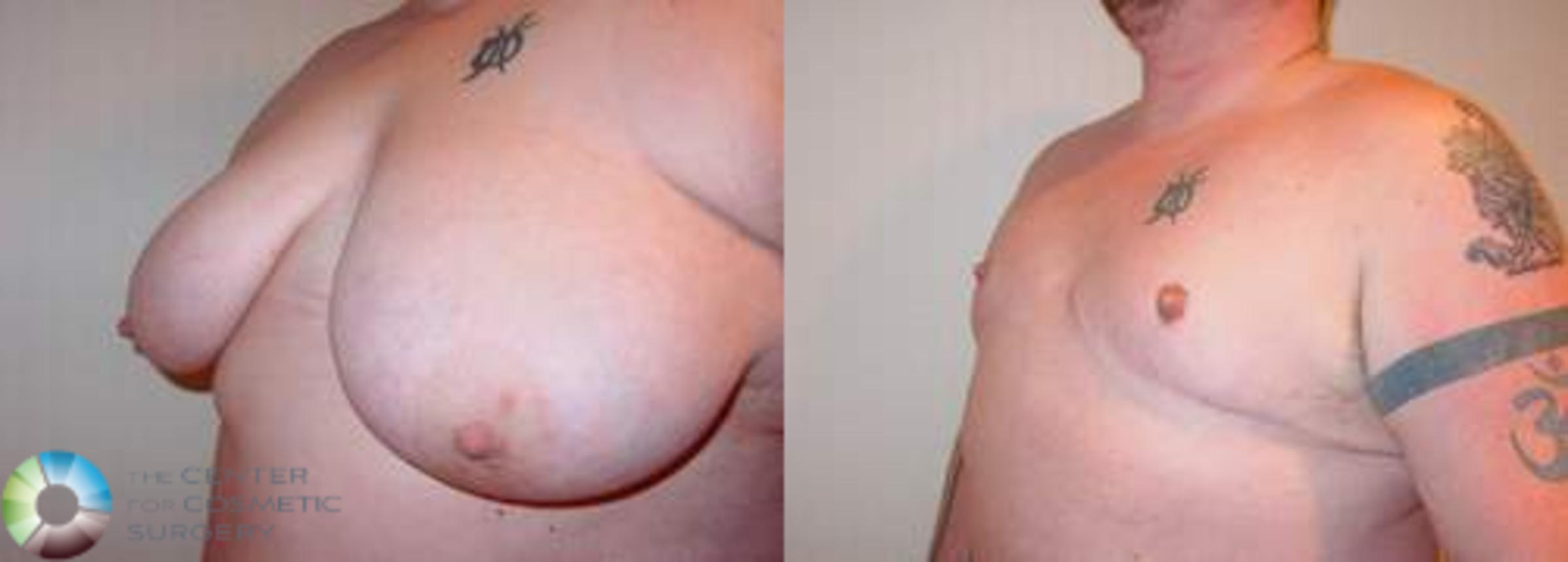 FTM Top Surgery/Chest Masculinization Case 559 Before & After View #2 | Golden, CO | The Center for Cosmetic Surgery