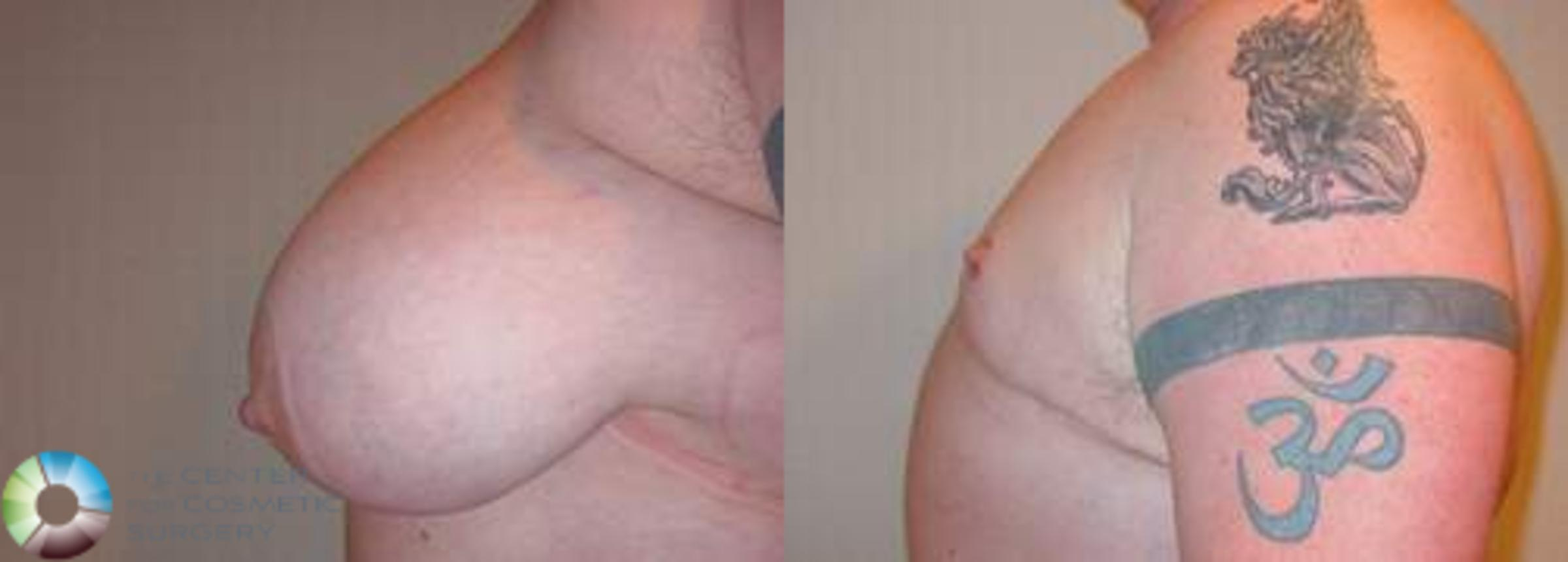 FTM Top Surgery/Chest Masculinization Case 559 Before & After View #3 | Golden, CO | The Center for Cosmetic Surgery