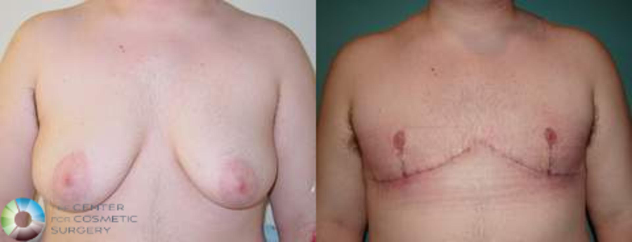 FTM Top Surgery/Chest Masculinization Case 560 Before & After View #1 | Golden, CO | The Center for Cosmetic Surgery