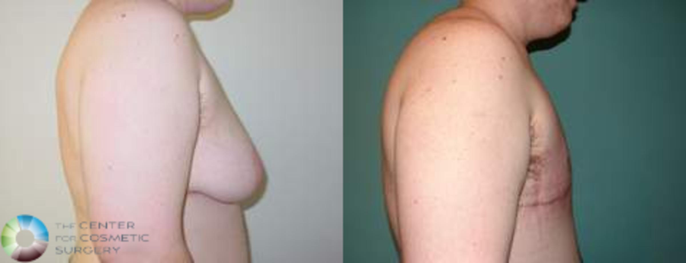 FTM Top Surgery/Chest Masculinization Case 560 Before & After View #3 | Golden, CO | The Center for Cosmetic Surgery
