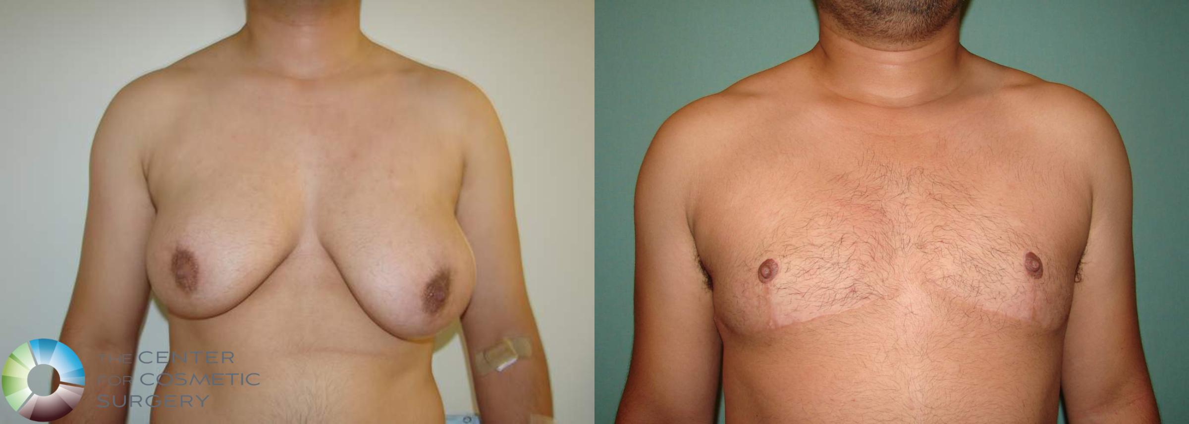 FTM Top Surgery/Chest Masculinization Case 566 Before & After View #1 | Golden, CO | The Center for Cosmetic Surgery