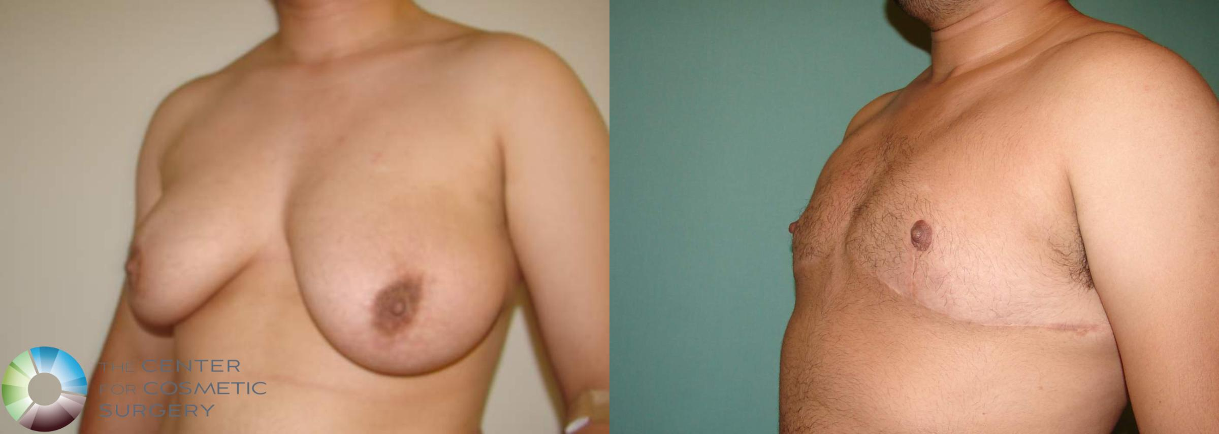 FTM Top Surgery/Chest Masculinization Case 566 Before & After View #2 | Golden, CO | The Center for Cosmetic Surgery