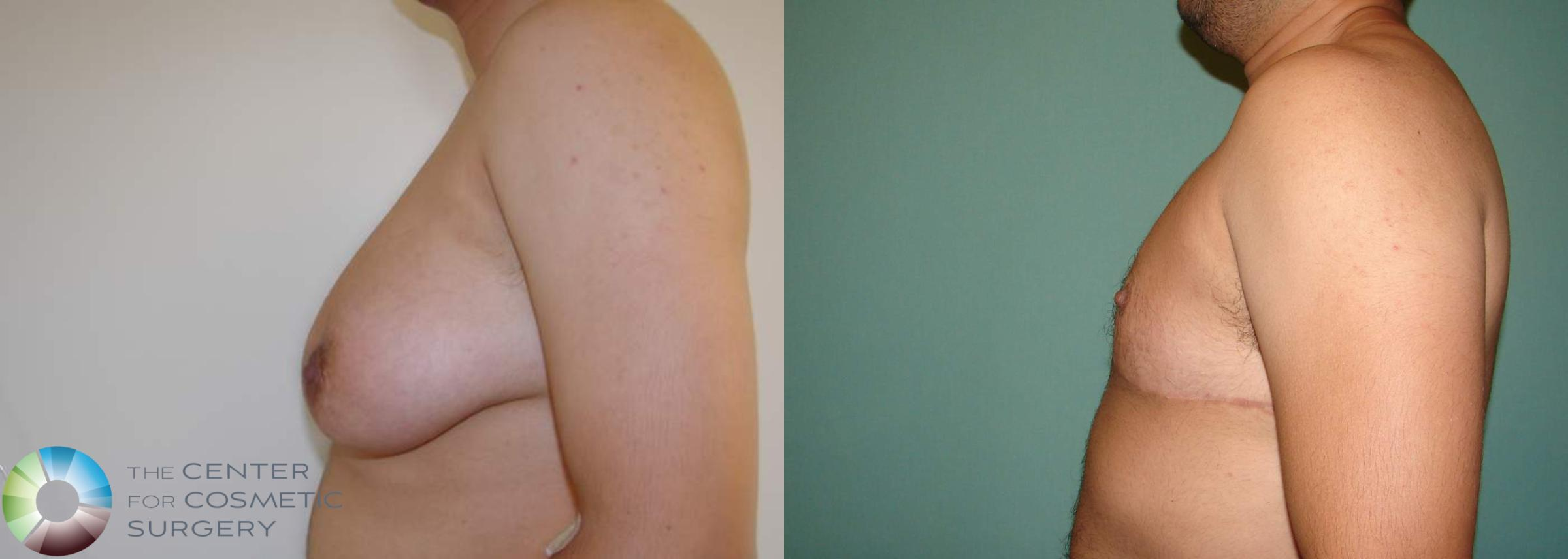 FTM Top Surgery/Chest Masculinization Case 566 Before & After View #3 | Golden, CO | The Center for Cosmetic Surgery