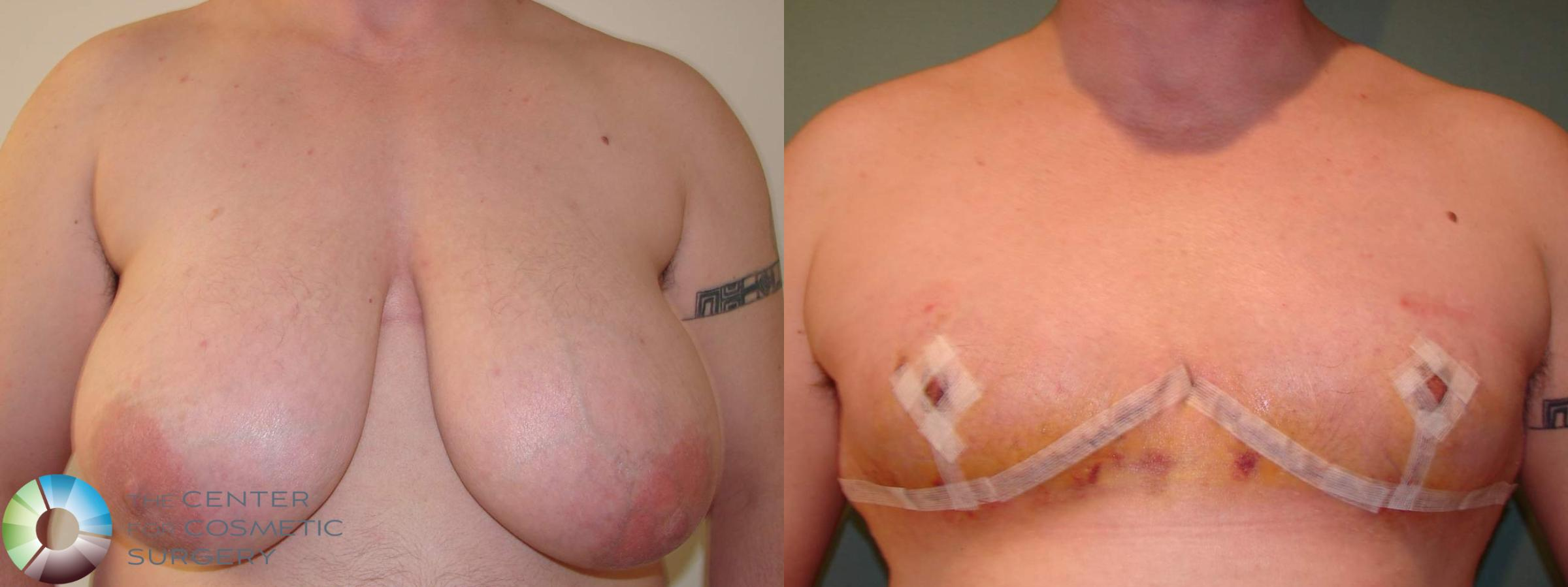 "Best Denver ""Inverted-T"" Top Surgery"