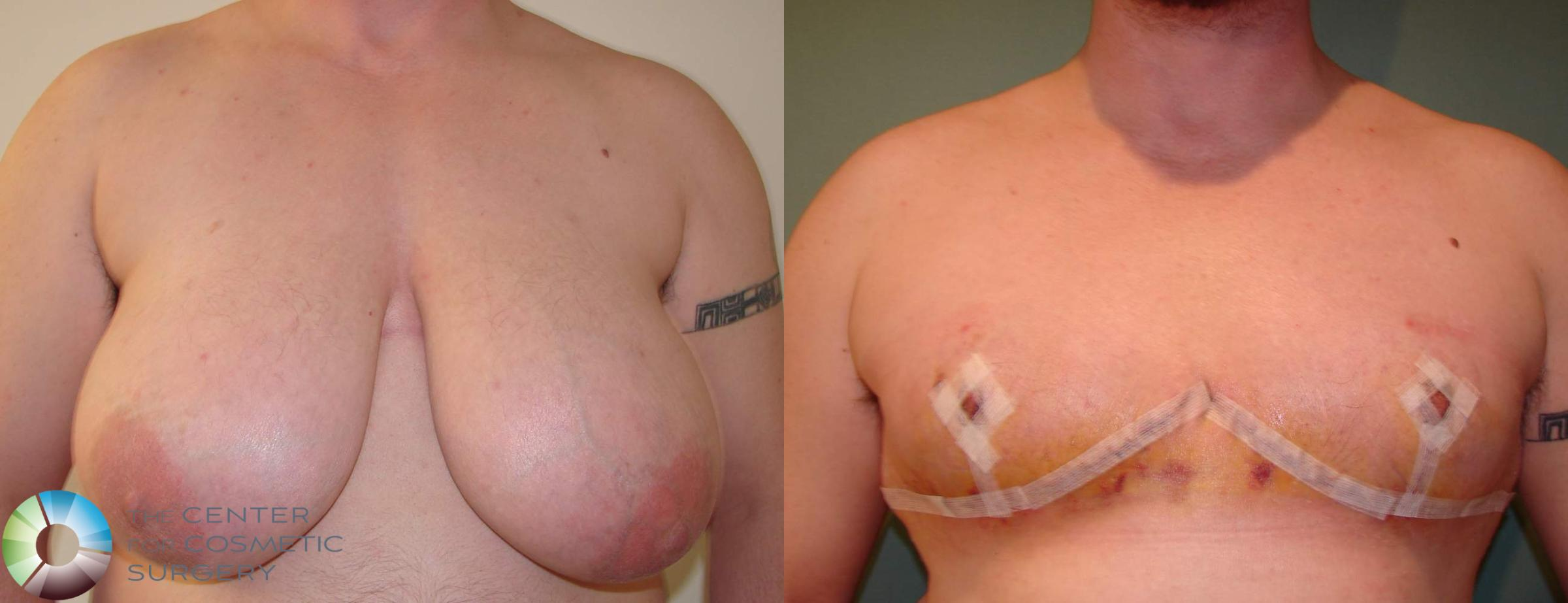 FTM Top Surgery/Chest Masculinization Case 611 Before & After View #1 | Golden, CO | The Center for Cosmetic Surgery