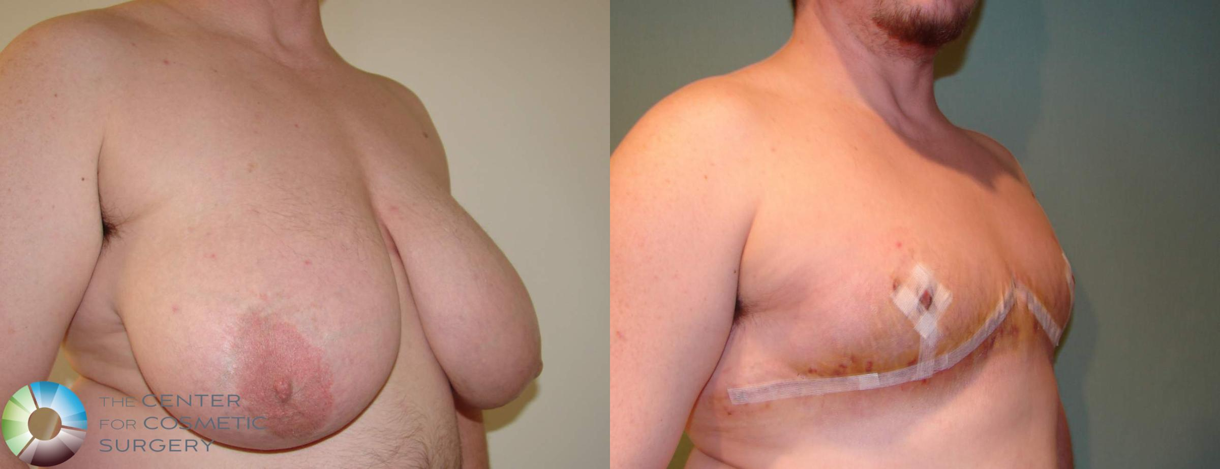 FTM Top Surgery/Chest Masculinization Case 611 Before & After View #2 | Golden, CO | The Center for Cosmetic Surgery