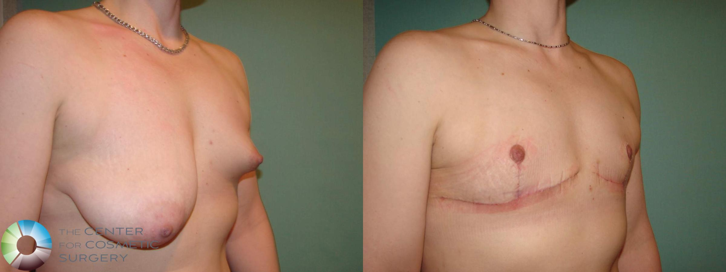 "FTM/""Inverted-T"" Top Surgery for significant asymmetry"