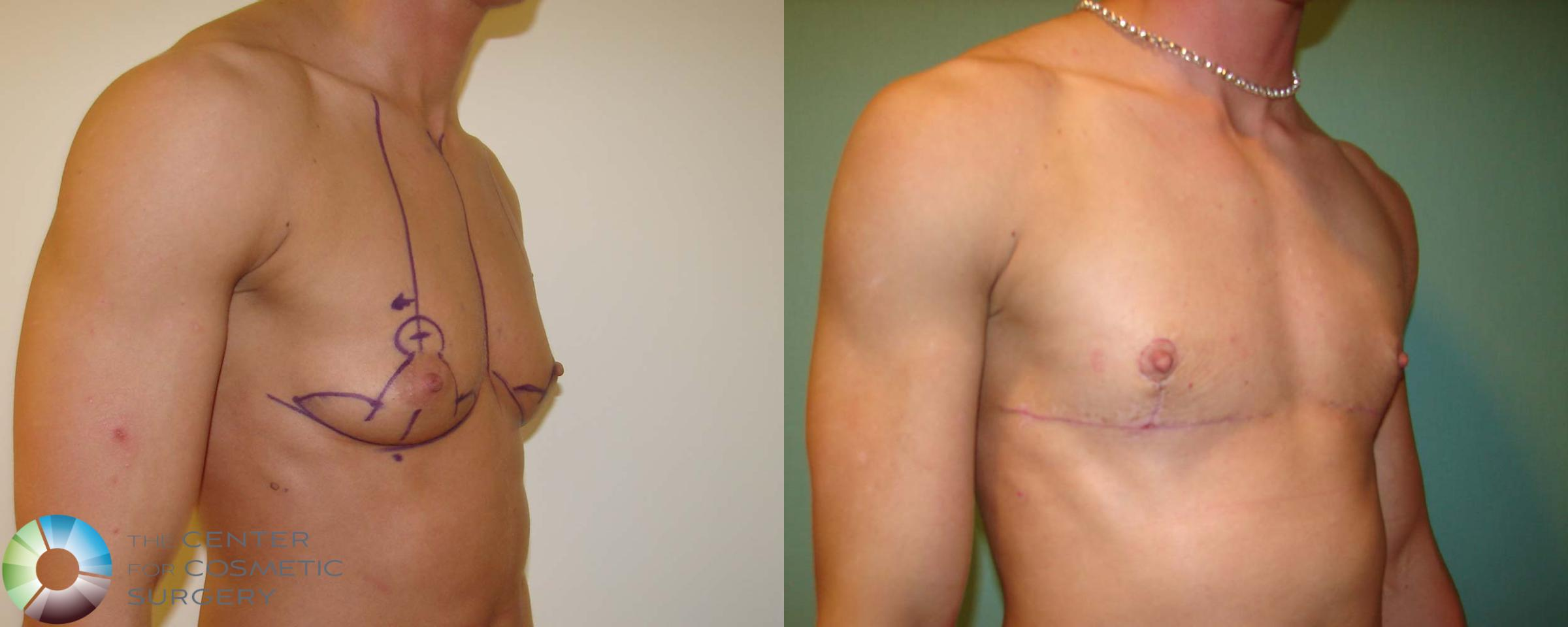 FTM Top Surgery/Chest Masculinization Case 672 Before & After View #2 | Denver & Golden, CO | The Center for Cosmetic Surgery