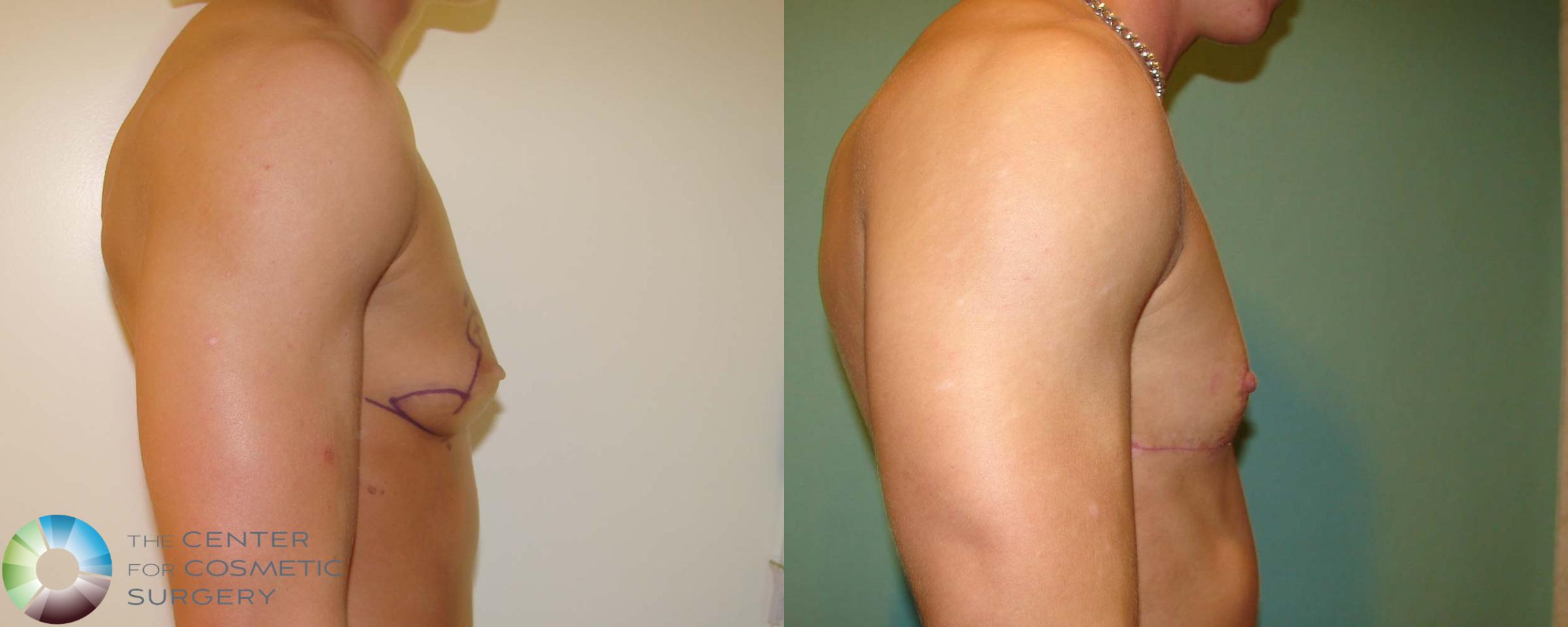 FTM Top Surgery/Chest Masculinization Case 672 Before & After View #3 | Golden, CO | The Center for Cosmetic Surgery