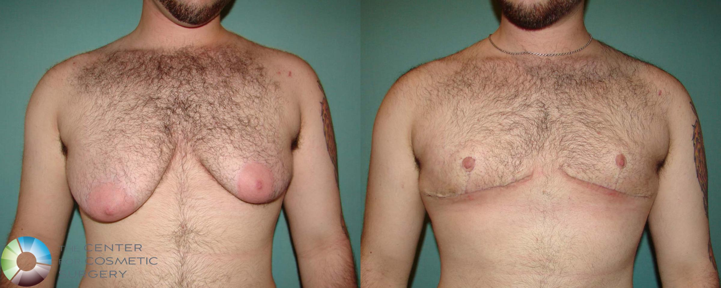 FTM Top Surgery/Chest Masculinization Case 674 Before & After View #1 | Golden, CO | The Center for Cosmetic Surgery