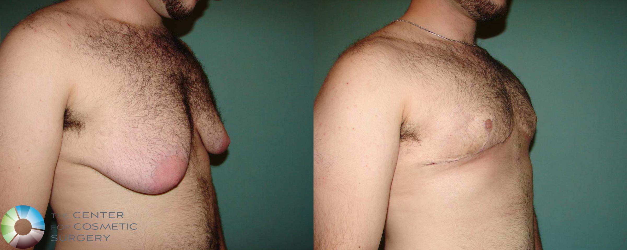 FTM Top Surgery/Chest Masculinization Case 674 Before & After View #2 | Golden, CO | The Center for Cosmetic Surgery