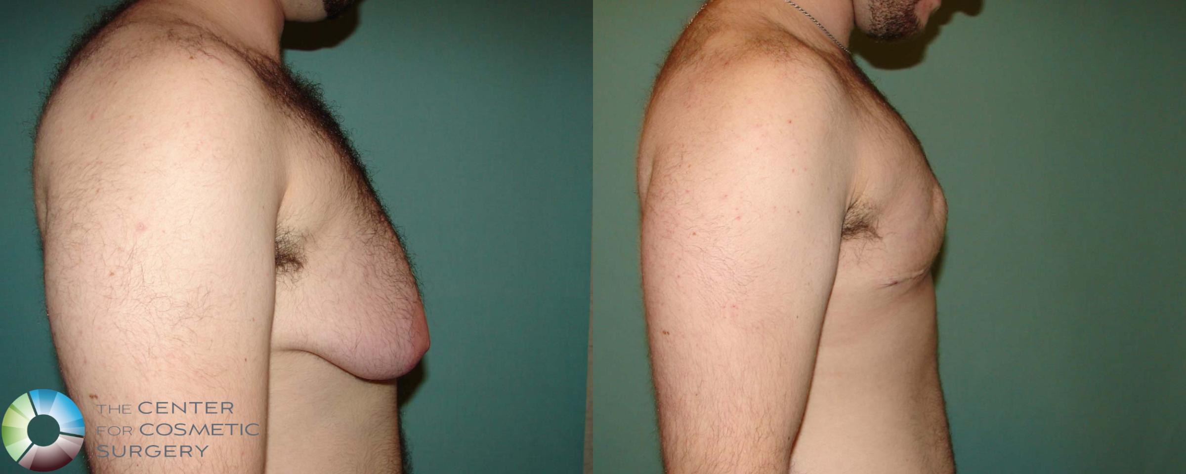 FTM Top Surgery/Chest Masculinization Case 674 Before & After View #3 | Golden, CO | The Center for Cosmetic Surgery