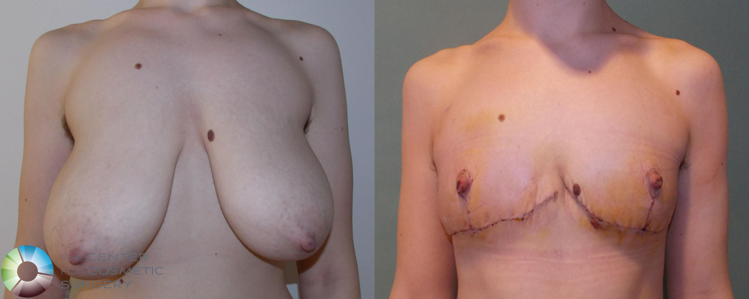 FTM Top Surgery/Chest Masculinization Case 693 Before & After View #1 | Golden, CO | The Center for Cosmetic Surgery