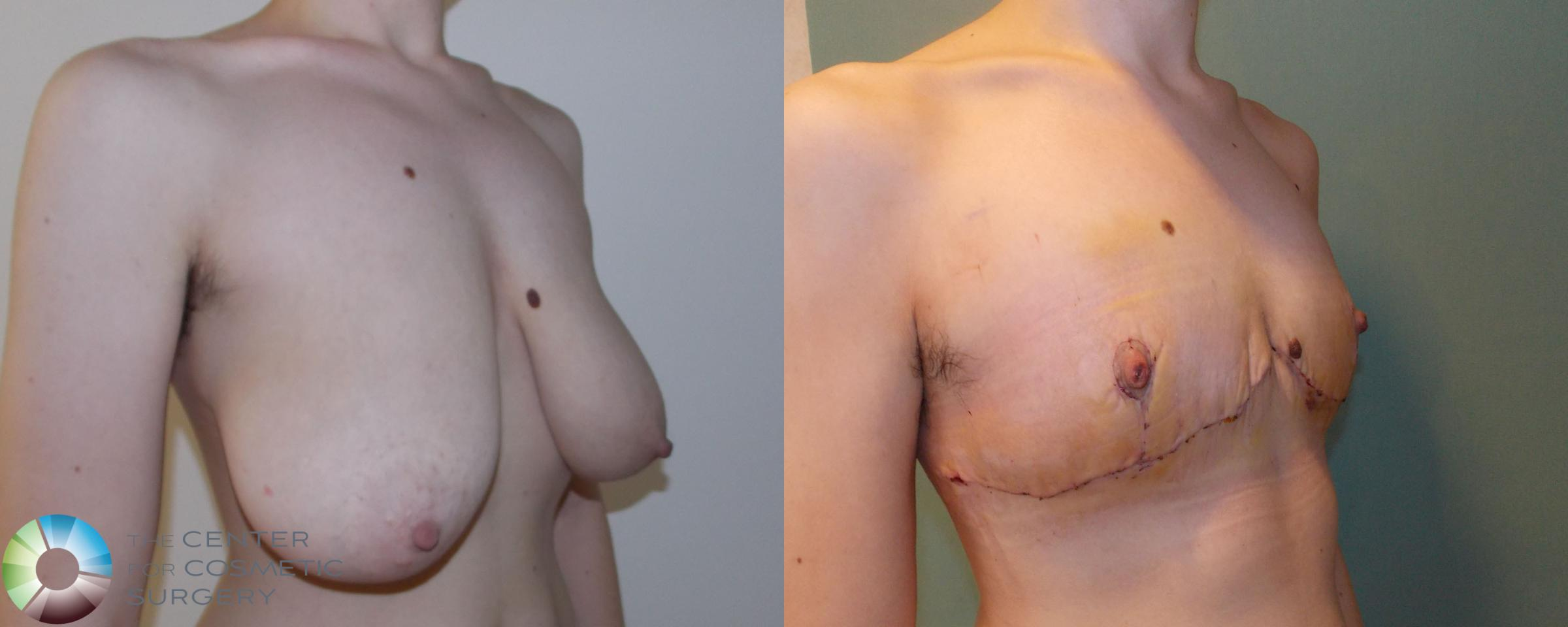 FTM Top Surgery/Chest Masculinization Case 693 Before & After View #2 | Golden, CO | The Center for Cosmetic Surgery