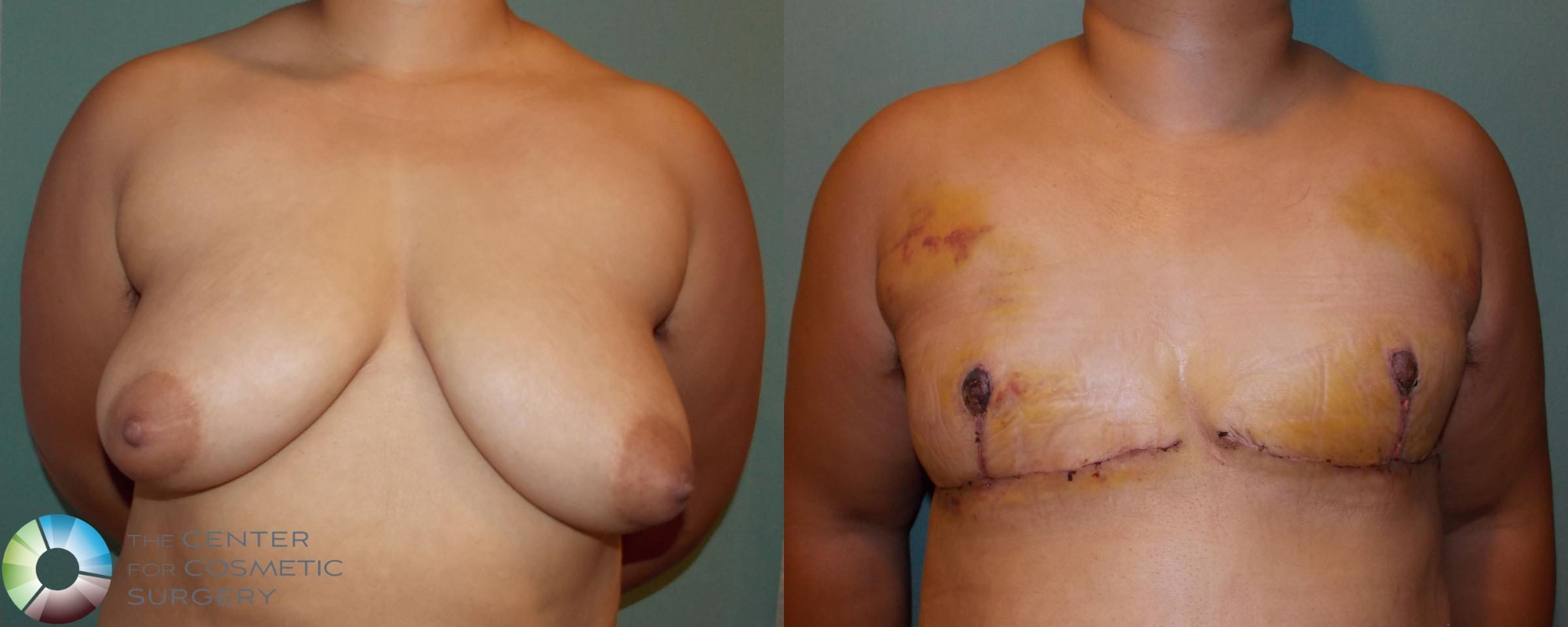 FTM Top Surgery/Chest Masculinization Case 699 Before & After View #1 | Golden, CO | The Center for Cosmetic Surgery