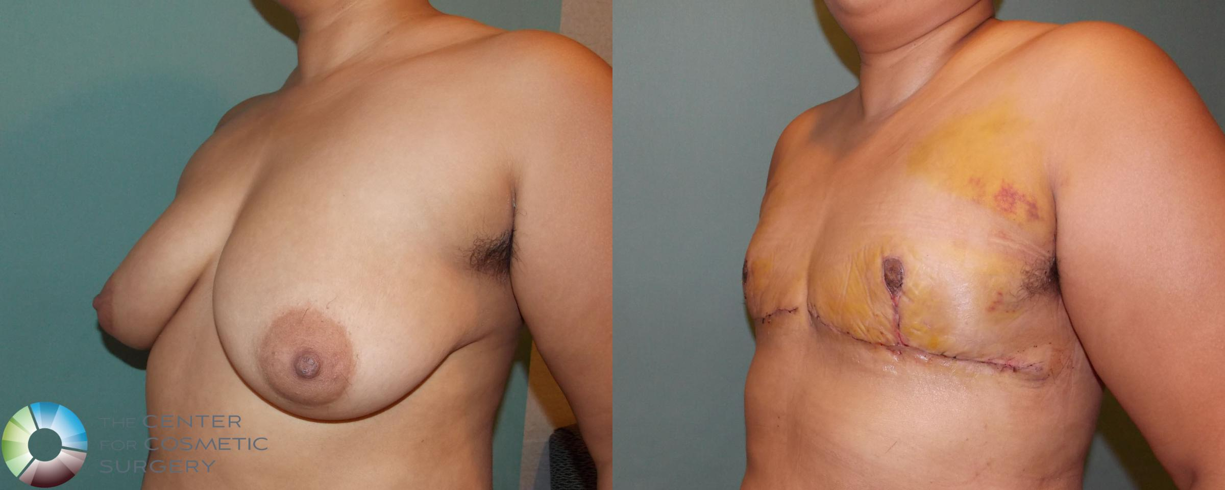 FTM Top Surgery/Chest Masculinization Case 699 Before & After View #2 | Golden, CO | The Center for Cosmetic Surgery