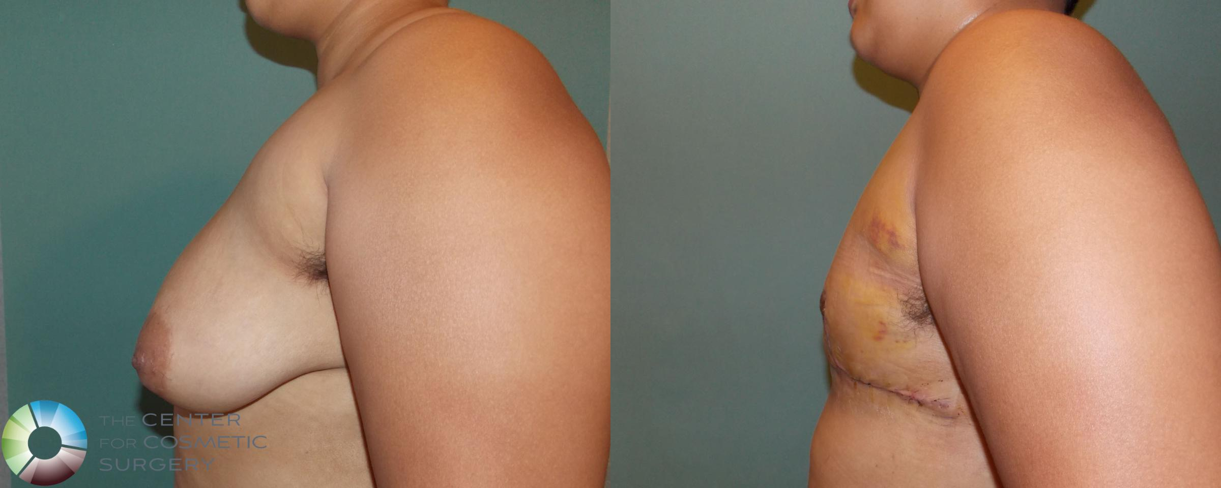 FTM Top Surgery/Chest Masculinization Case 699 Before & After View #3 | Golden, CO | The Center for Cosmetic Surgery