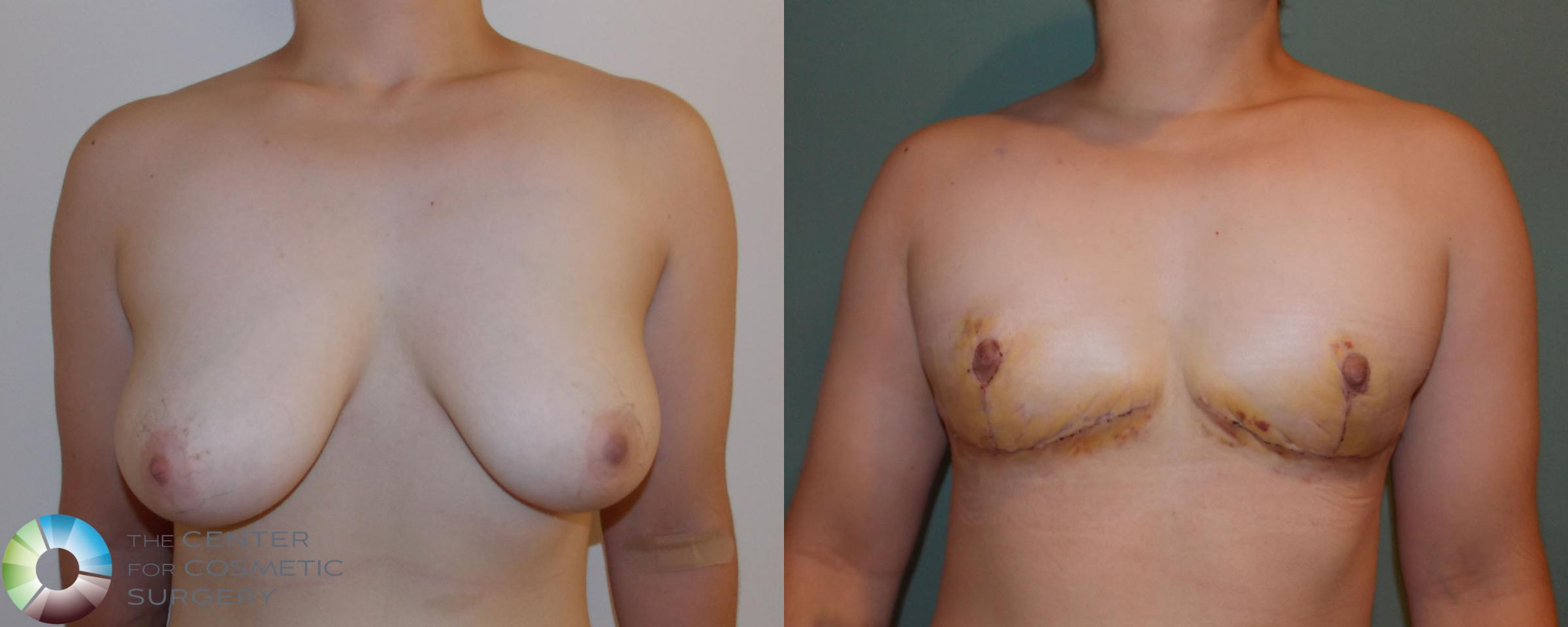 FTM Top Surgery/Chest Masculinization Case 700 Before & After View #1 | Golden, CO | The Center for Cosmetic Surgery